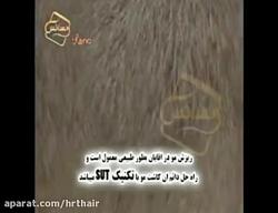 انیمیشن روش کاشت مو به روش SUT