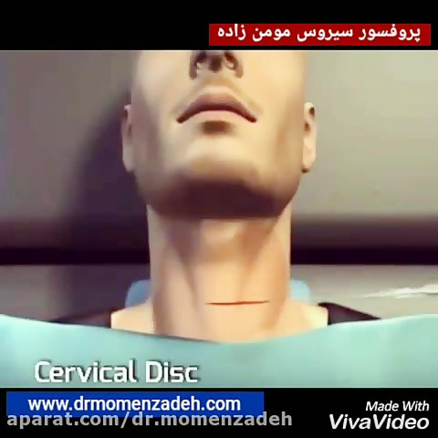 عمل جراحی باز دیسک گردن