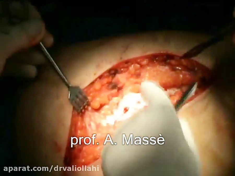 -T- Type Acetabular Fracture Treated through Surgical H
