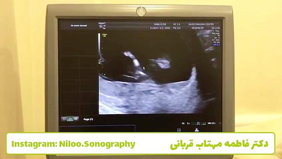 سونوگرافی جنین - 12 هفته - NT