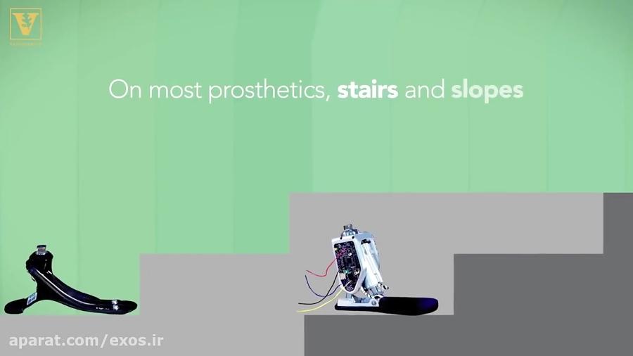 پای مصنوعی هوشمند برای پیمودن سراشیبی و پله ها