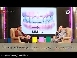تقارن بین خط دندان ها
