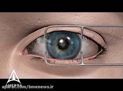 انیمیشن جراحی لازیک چش...