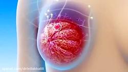 انیمیشن سرطان سینه