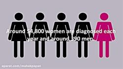 سرطان زنان-سرطان سینه