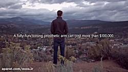 مهندسی جوان که با ساخت دست مصنوعی در پی ایجاد تغییر است