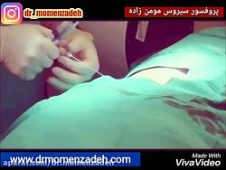 هر آنچه که باید در مورد عمل غیر جراحی دیسک کمر و گردن با لیزر بدانید(بخش دوم)