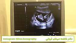 سونوگرافی جنین - قرارگیری صحیح جنین در سونوی NT