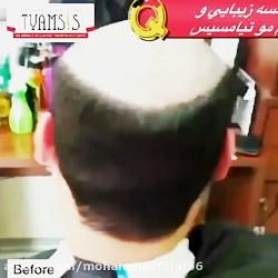 برترین ترمیم مو ایران