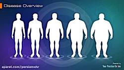 جراحی درمان چاقی بای پس معده