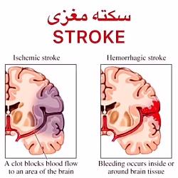 سکته مغزی (خفیف و شدید) چیست.درمان های فیزیوتراپی توانبخشی،کاردرمانی 09122655648