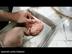 تشریح مغز گوسفند