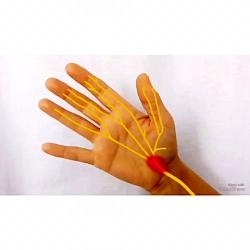 درمان سندرم تونل کارپال.طراحی وب سایت پزشکی09122655648سهندوب