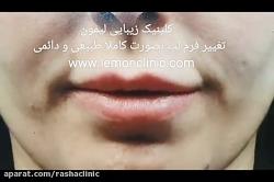 حجیم سازی لب و برجسته سازی فیلتروم لب در مرکز جراحی لب تهران