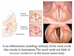 گرفتگی صدا .درمان 09120452406 بیگی. گرفتگی صدا.