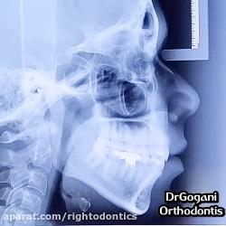 کشیدن دندان در ارتودنسی چه زمانی قابل قبوله؟