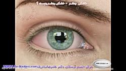 خشکی چشم چیست؟ مرکز چشم پزشکی دکتر علیرضا نادری