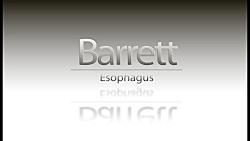 Barrett Esophagus Endoscopic Animation