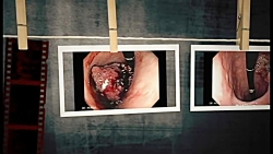 Gastric Cancer Photo Gallery
