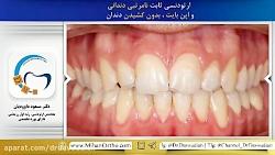 ارتودنسی ثابت بدون کشیدن دندان | دکتر داودیان