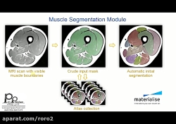 Automatically With the Muscle Segmentation Tool part 1