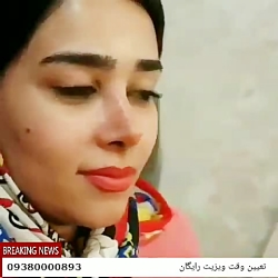 جراحی بینی در مشهد | نمونه کار عمل بینی در مشهد | 09380000893