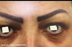جراحی زیبایی و اصلاح افتادگی پلک