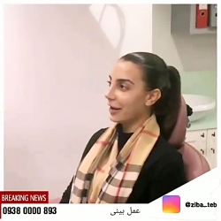 عمل بینی در مشهد (جراحی بینی در مشهد )| مشاوره 09380000893