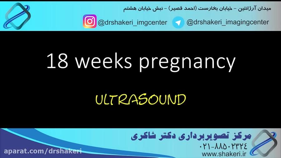 سونوگرافی تعیین جنسیت جنین / مرکز تصویربرداری دکتر شاکری