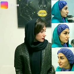 عمل زیبایی بینی در مشهد | مشاوره رایگان 09380000893