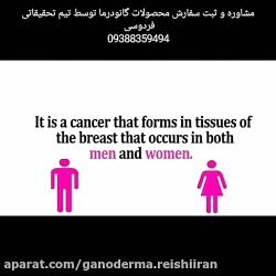سرطان سینه گانودرما سرطان درمان قارچ بیماری