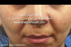 زیباسازی چهره با ایجاد ...