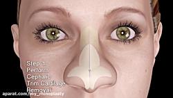 عمل جراحی بینی چگونه انجام می شود ؟