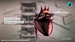 حمله قلبی چگونه اتفاق می افتد؟