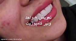 اصلاح طرح لبخند اصفهان...