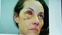 ماجرای یکی از مشهورترین کیس های آزار جنسی زنان در آمریکا