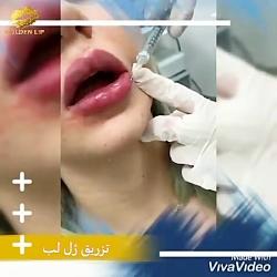 تزریق ژل لب در کلینیک ز...