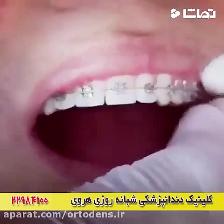 فیلم کوتاه از ارتودنسی دندان ها