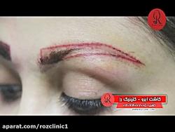 کاشت ابرو   فیلم کاشت ابرو   کلینیک پوست و مو رز   شماره36