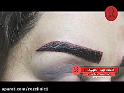 کاشت ابرو   فیلم کاشت ابرو   کلینیک پوست و مو رز   شماره37