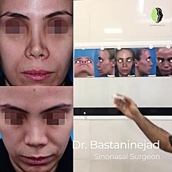 جراحی بینی - دکتر شاهین باستانی نژاد