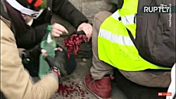قطع شدن دست یک معترض توسط پلیس فرانسه (+18)