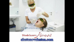 دستگاه های لیزرهای دایود (Diode lasers) در دندان پزشکی