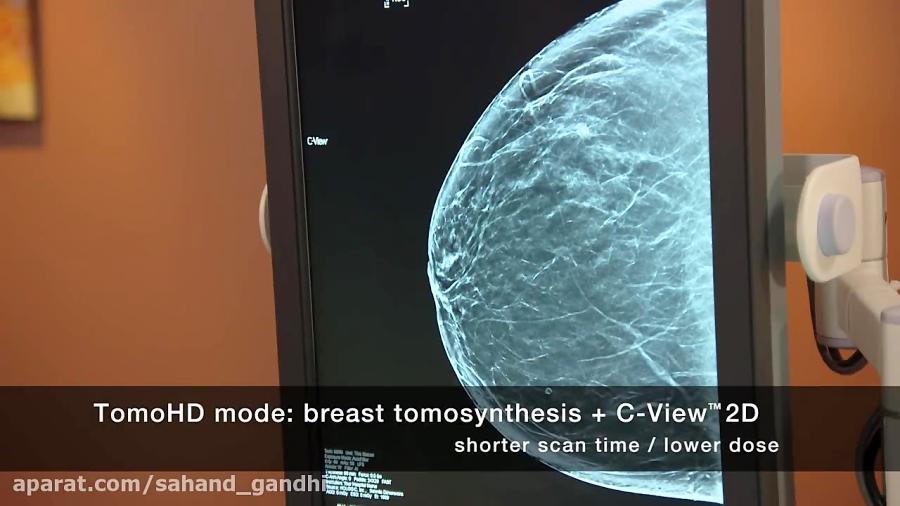 تشخیص زودهنگام سرطان سینه