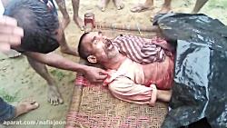 مرد هندی پس از حمله وحش...