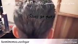 ترمیم مو اقایان بدون جراحی به روشHRP_مرکز تخصصی ترمیم مو رستگار در اصفهان