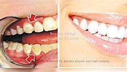جرم گیری دندان در خانه