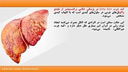 پیشگیری و درمان کبد چرب