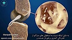 دلایل و درمان پوکی استخوان (بخش اول)