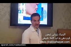 ایجاد تقارن در لبها و فرم دهی توسط بهترین تیم جراحی زیبایی لب تهران